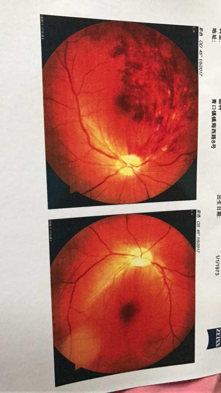眼睛严重充血图片_高血压带眼睛充血到底有多严重?需要住院观察吗?