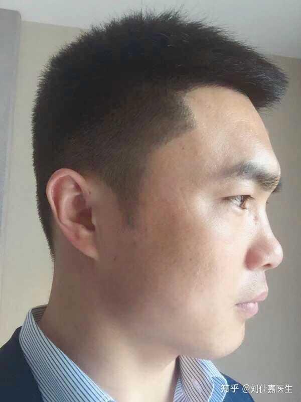 秃额角,发际线 高,适合什么发型?