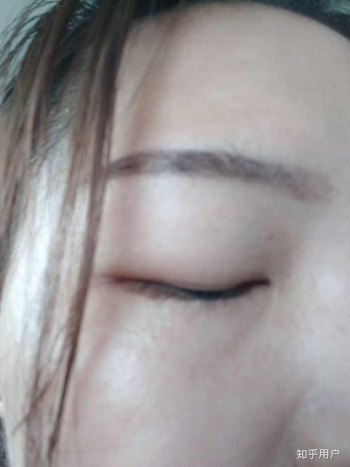 想操作你们肿方法的妹子有没有v方法的双眼皮贴?红米3手机截图怎么问问眼泡图片