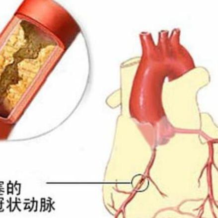 心脏搭桥手术图片