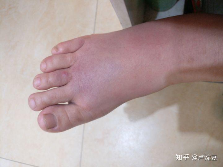 梦见自己的脚被蚂蚁咬