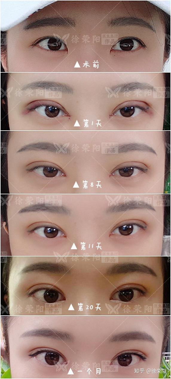 单眼皮和双眼皮有什么区别?图片