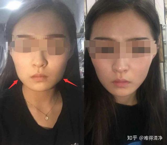 打瘦脸针是否有效吗