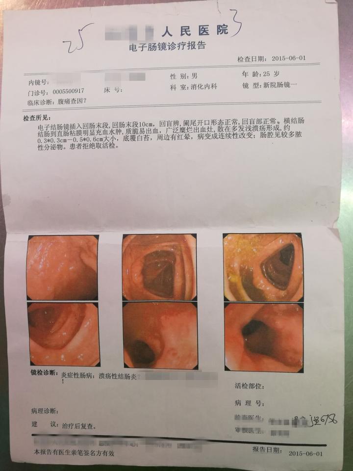然后6月1号做肠镜(普通肠镜真难受),结果可以确定是慢性结肠炎了(溃疡