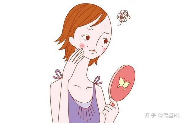 鼻子上很多黑头 有什么好用的有效的洗面奶或者小方法图片