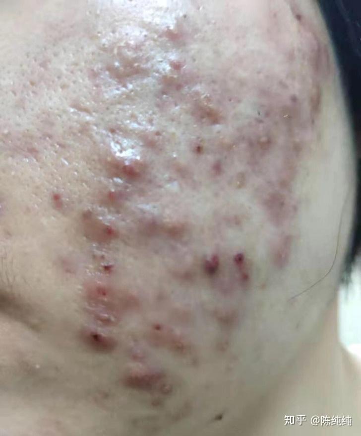 你们用过的最有效的祛痘和祛痘印的产品!【求拯救脸啊】?相关的图片