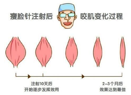 瘦脸针会不会导致脸部凹陷