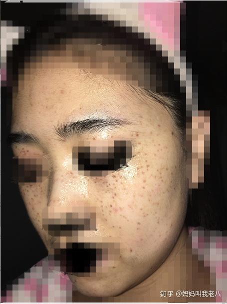 激光祛斑,更新中相关的图片