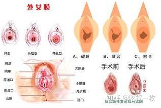 美处女阴户按摩视频_5, 处女膜修复:利用缝合法将性交,外伤,剧烈运动等原因破裂的处女膜