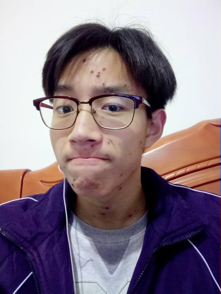 ェ~) 类似原先发痘时的角度吧,自行对比 ps:皮肤偏黑,额头上是颗痣图片