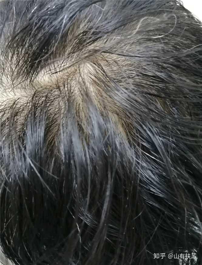 我这算不算脱发?