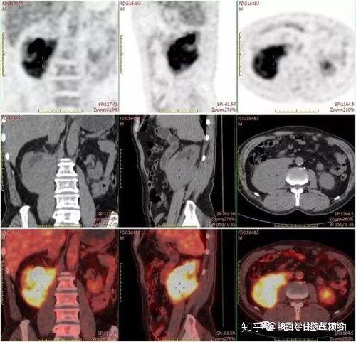 petct检查能确诊肾脏淋巴 瘤吗?
