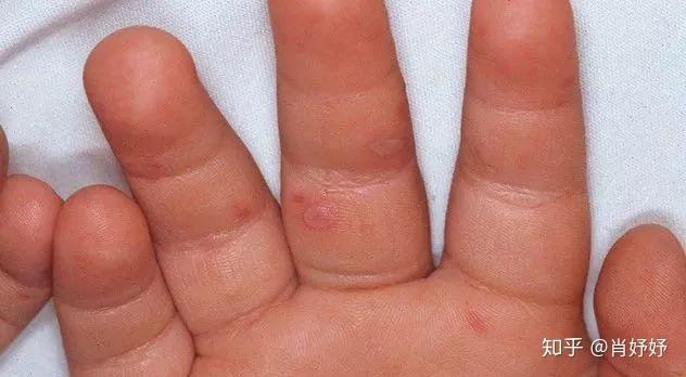 手足 口 病 症状 写真