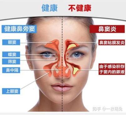 鼻腔 治療 法 炎 副