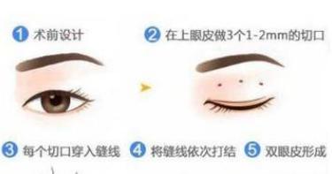 做双眼皮手术多久才能恢复(双眼皮术后多久可以恢复)插图(2)