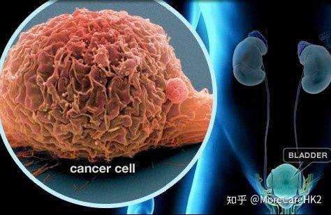 癌 bcg 膀胱