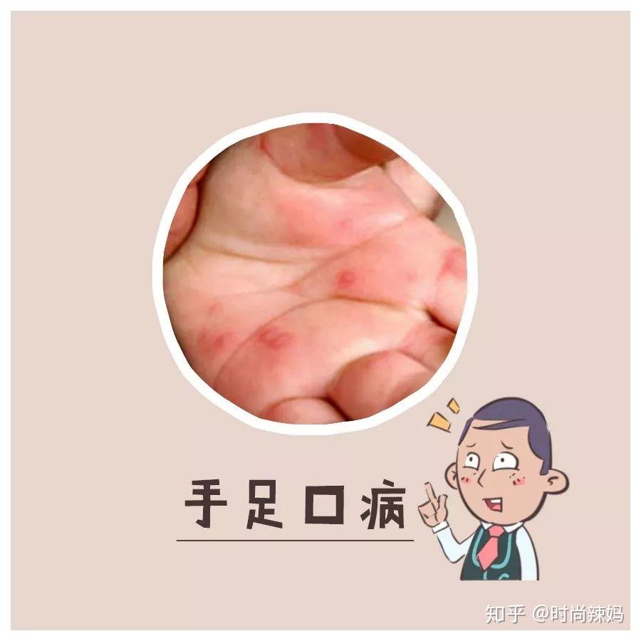 手足 口 病 大人 感染 率