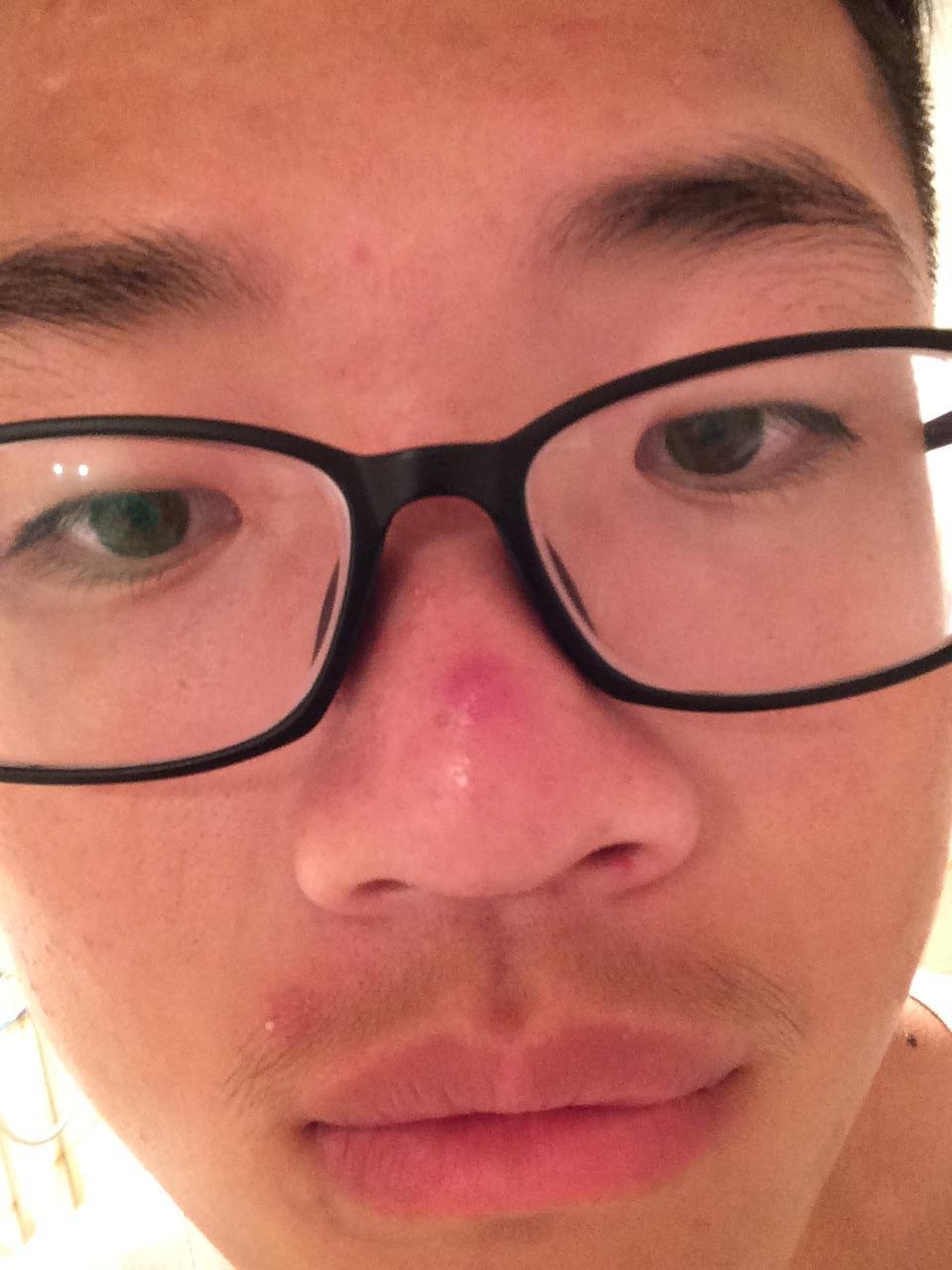 鼻子长红包硬痛