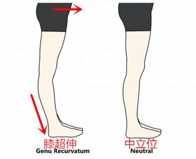 改善 反 張 膝