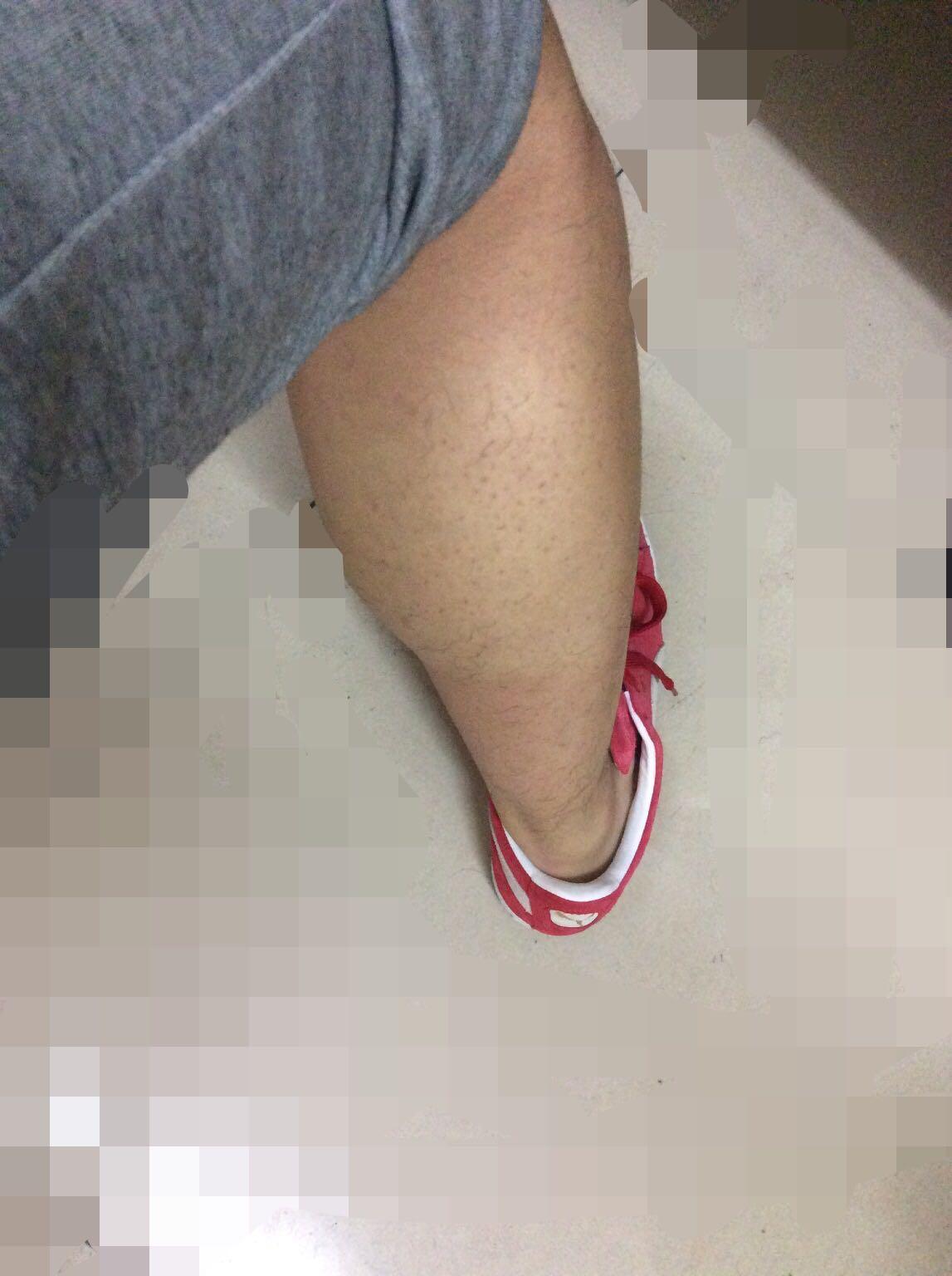 【男生怎么瘦小腿肌肉】_瘦腿_男人_怎么瘦_如何减-大众养生网