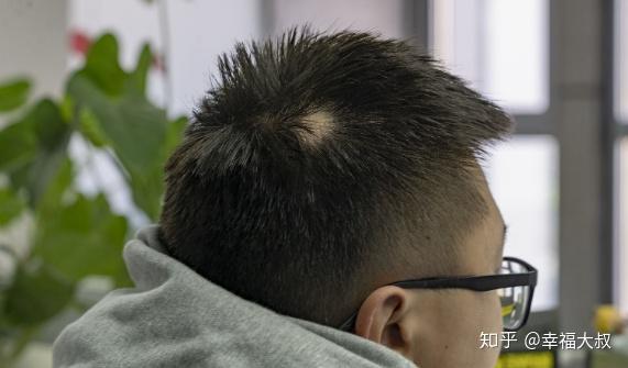 斑秃治疗最快的方法_斑秃的原因和治疗最快的方法 - 知乎