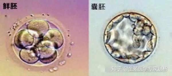 鲜胚、囊胚、冻胚移植那个成功率最高?/