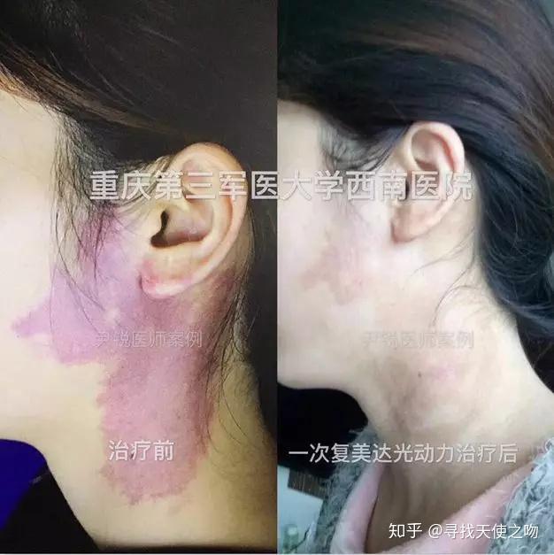 光动力鲜红斑痣_鲜红斑痣复美达光动力治疗痊愈,基愈病例展示