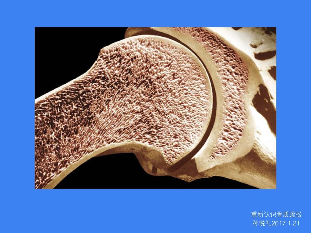 """重新认识骨质疏松——一年之后再来说说我们的""""贱骨头"""""""