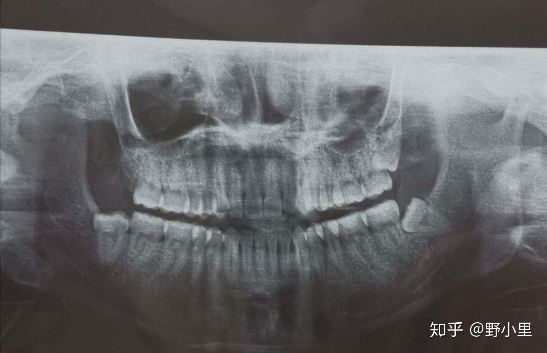 拔智齿医院好还是私人口腔门诊好_上颚智齿好拔还是下颚
