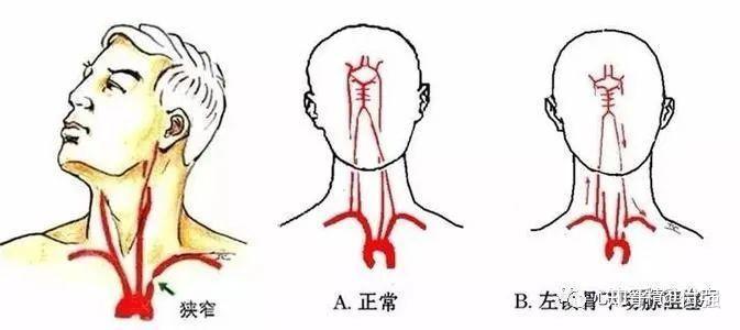 鎖骨 下 動脈