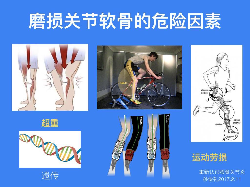 重新认识「膝骨关节炎」——手绘插图多到爆炸的一期Live文字整理稿