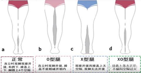 原因 x 脚 X脚の原因と改善法について