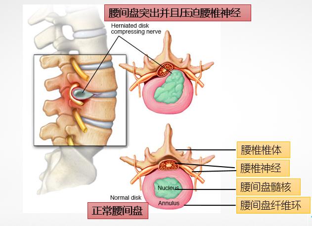 腰椎间盘突出的原因_腰椎间盘突出后,你该知道的康复知识 - 知乎
