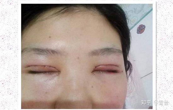 双眼皮手术过程_全切双眼皮恢复过程图 看完不那么害怕割双眼皮了 - 知乎