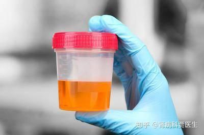 潜血 2 原因 尿
