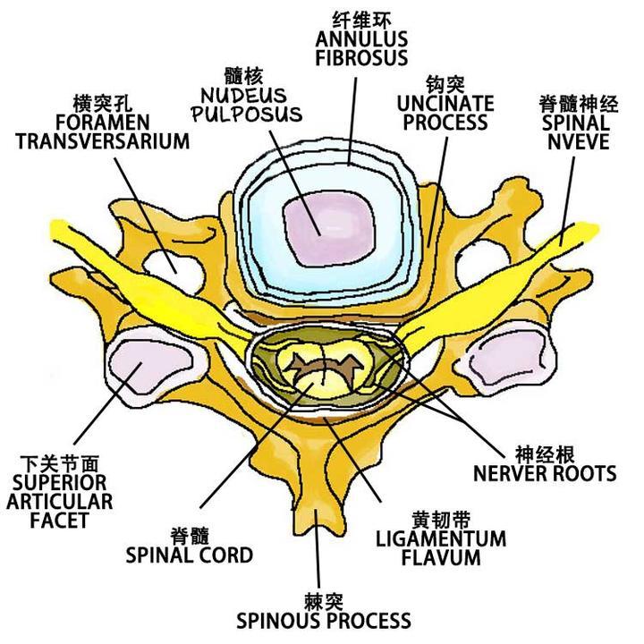 颈椎病最严重的症状_提到手术就害怕,颈椎病手术安全吗? - 知乎