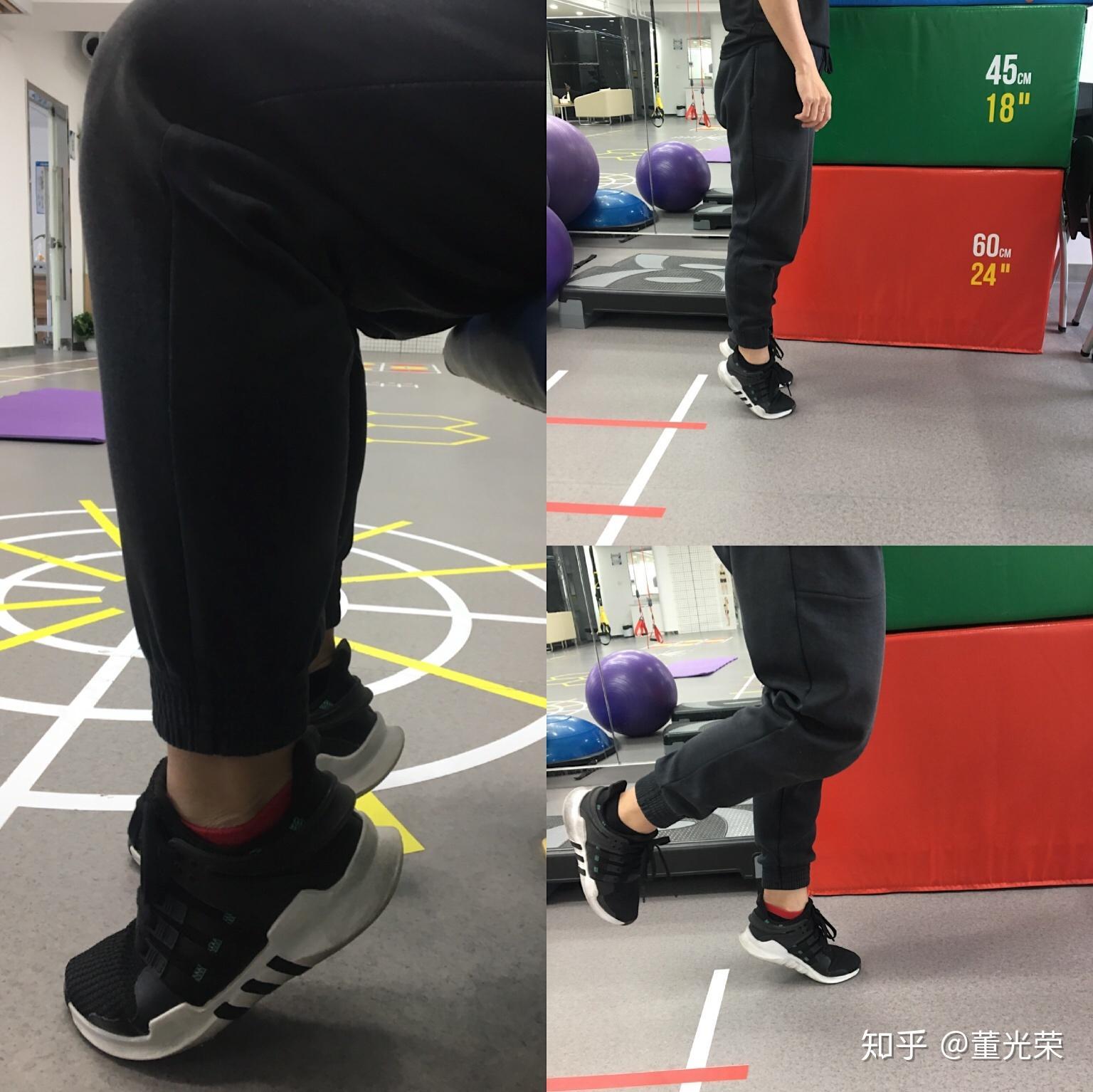 小腿肌肉萎缩的症状