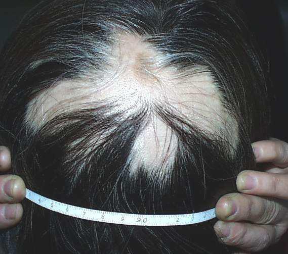 鬼剃头是什么原因_女性斑秃的八大原因 - 知乎