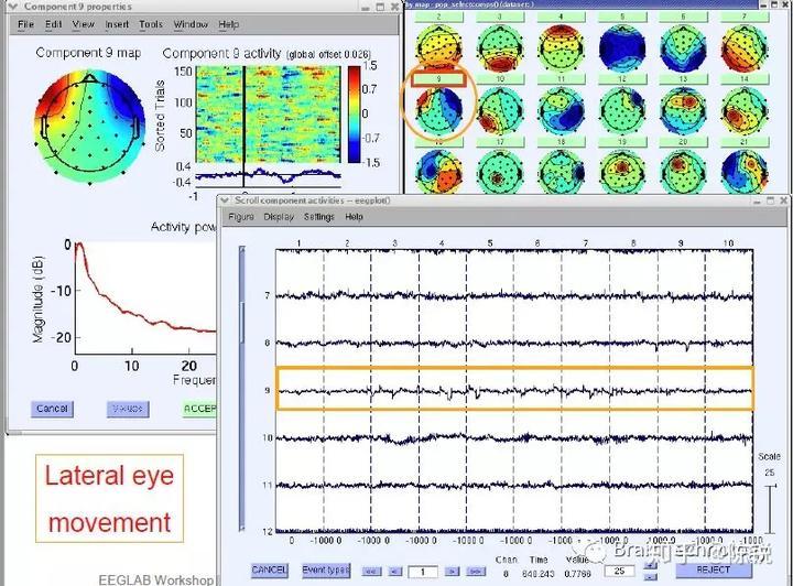 脑电分析之眼电纠正- 知乎