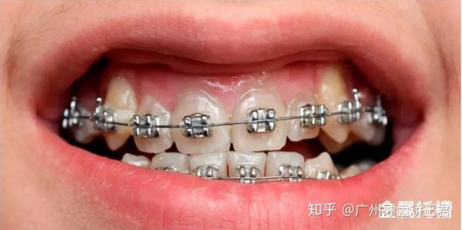 自锁托槽牙套_自锁非自锁托槽牙套的区别是什么?一篇文章带你了解所有矫治 ...