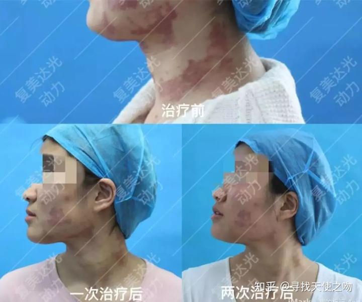 光动力鲜红斑痣_与激光相比, 复美达光动力可以用于绝大多数部位鲜红斑痣的治疗.