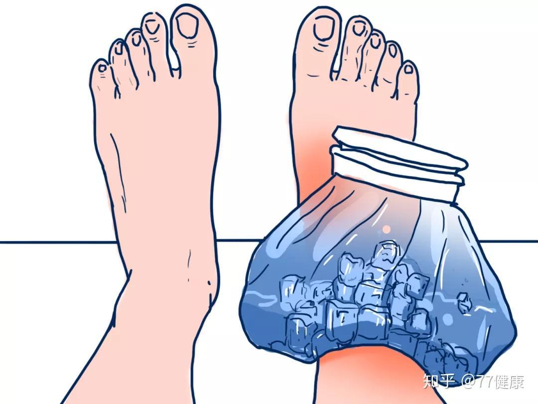 故意崴脚的简单方法 最容易骨折的办法
