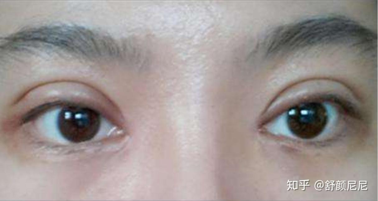 双眼皮手术后开眼角_割双眼皮和埋线哪种比较好啊? - 知乎