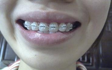陶瓷自锁牙套_除了带钢牙套,还有那些更美观的正畸方案?这些方案有那些 ...