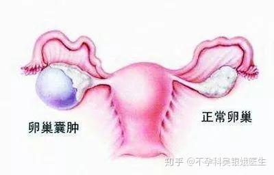腹部 生理 痛 下 前