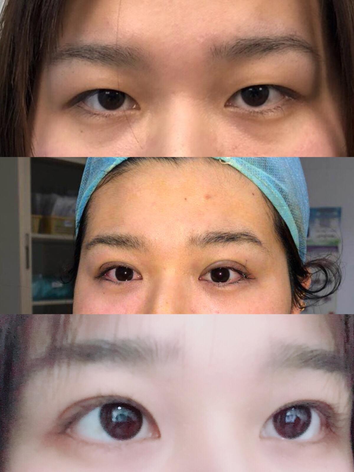 保持好的心态_埋线双眼皮能保持多久? - 知乎