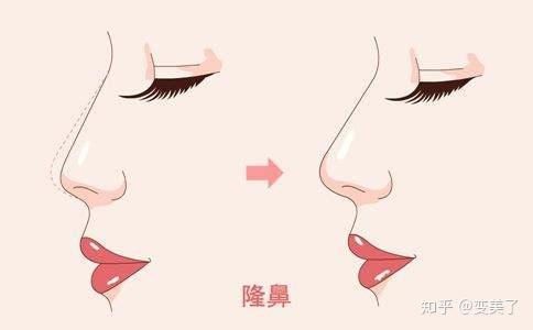 鼻子整形后消肿要多久