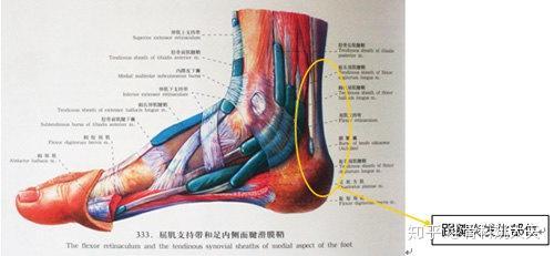 高跟鞋俱乐部_如何预防跟腱炎? - 知乎