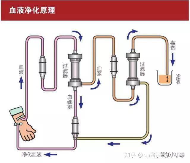 交換 血漿