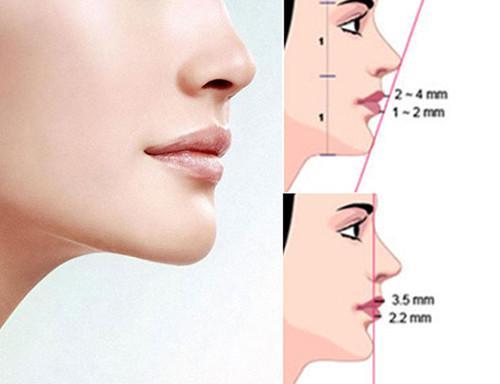 美人窩   改善方法:假體隆下巴   ●隆下巴對臉型改變很大對\凸嘴\的改善也是功不可沒的.